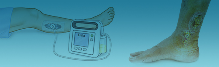 Disposable Negative Pressure Wound Therapy Devices Gain Adoption Upsurge across Home Care Settings