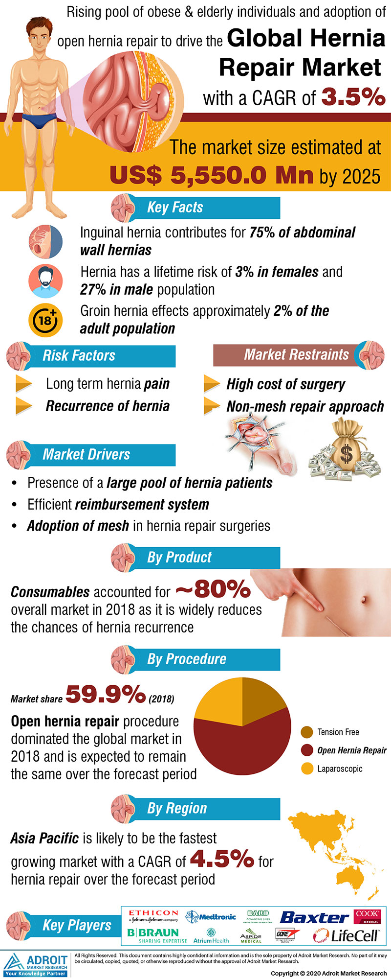 Global Hernia Repair Market Size 2017 By Product, Procedure, Region and Forecast 2018 to 2025