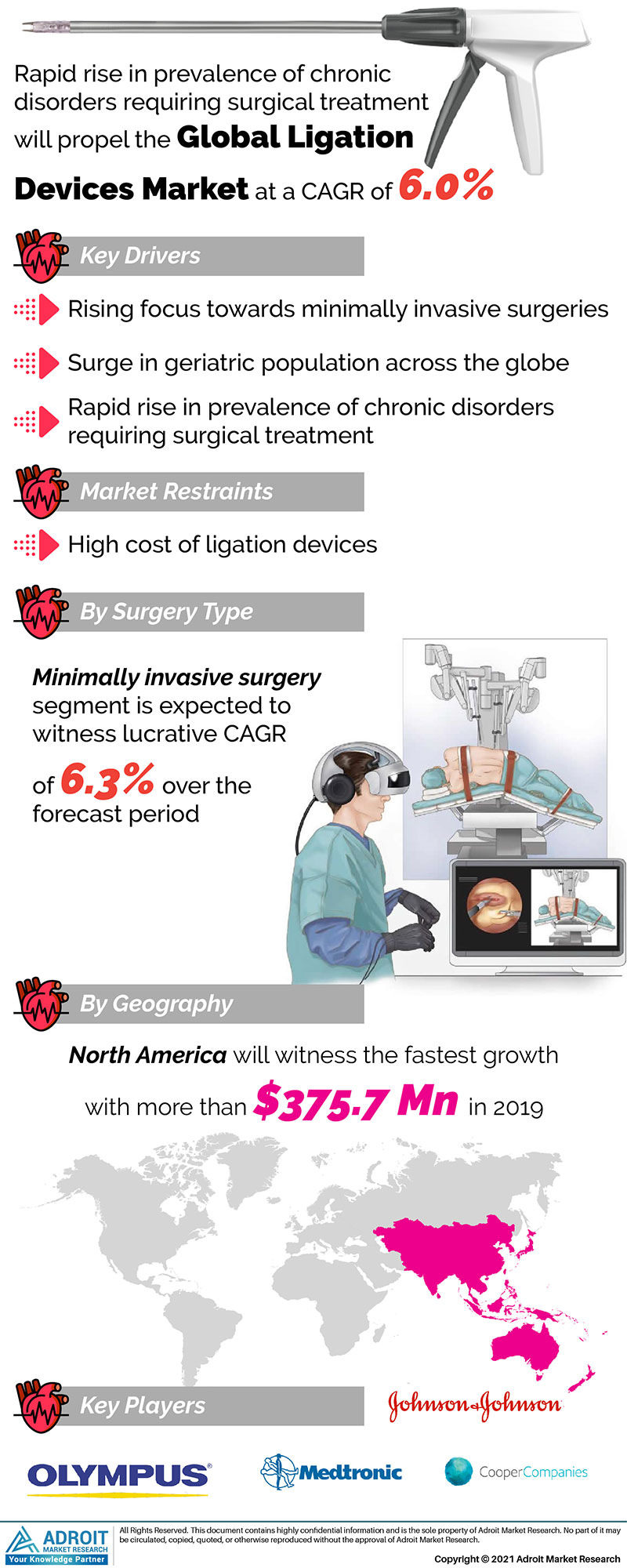 Ligation Devices Market Size 2017 By Application, Product, Region and Forecast 2019 to 2025