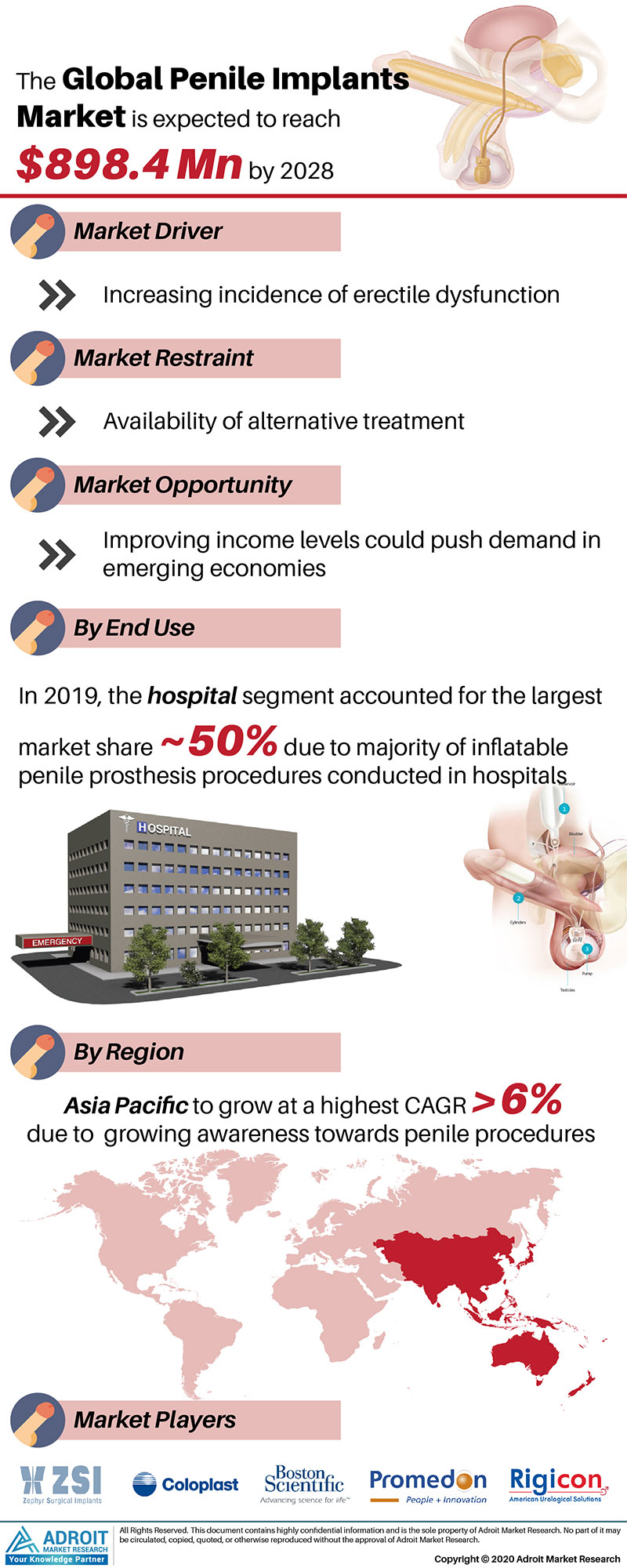 Penile Implant Market by Material, Application, and Region, Global Forecasts 2018 to 2025