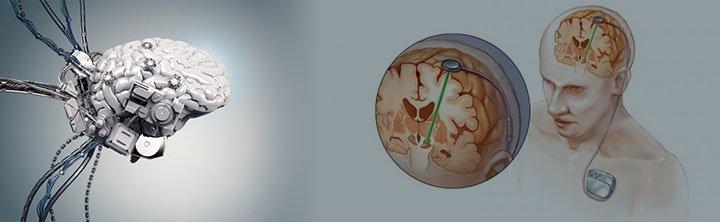 Brain Implants Market