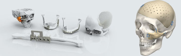 Craniomaxillofacial Implants Market Size and Business Opportunities