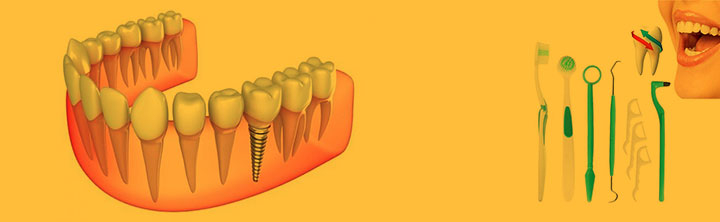 Dental Consumables Market Size to reach $52.2 billion by 2028