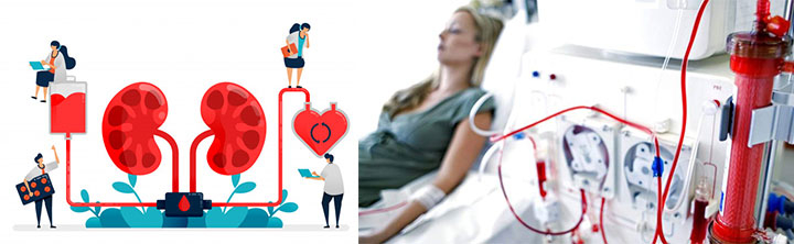 Hemodialysis and Peritoneal Dialysis Market Size to reach $105.11 billion by 2025