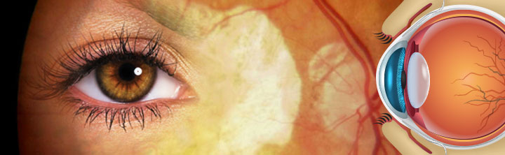 Retinal Biologics Market Size to reach US $18.3 billion by 2028