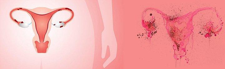 Global Endometriosis Market