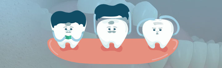 Importance of Dental Crowns and Bridges